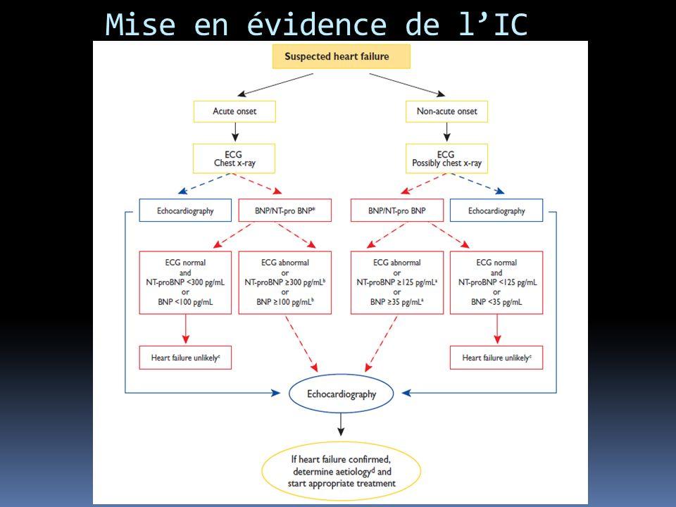 Mise en évidence de l'IC