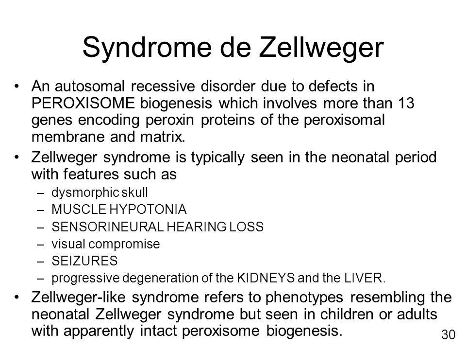 Syndrome de Zellweger