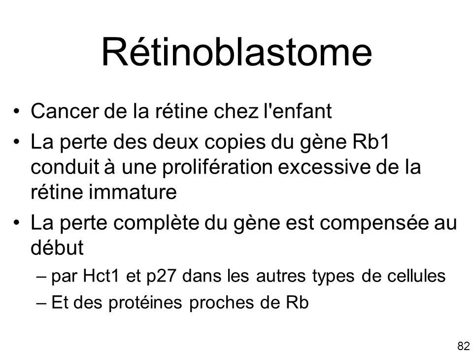 Rétinoblastome Cancer de la rétine chez l enfant