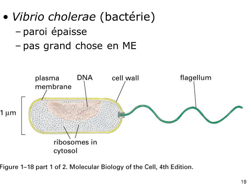 Fig 1-18(A) Vibrio cholerae (bactérie) paroi épaisse
