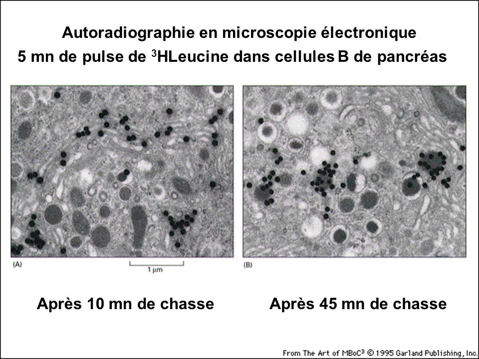 Fig 9-47 Autoradiographie en microscopie électronique
