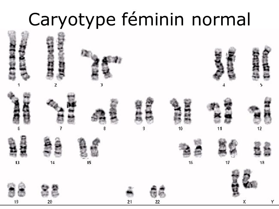 Caryotype féminin normal