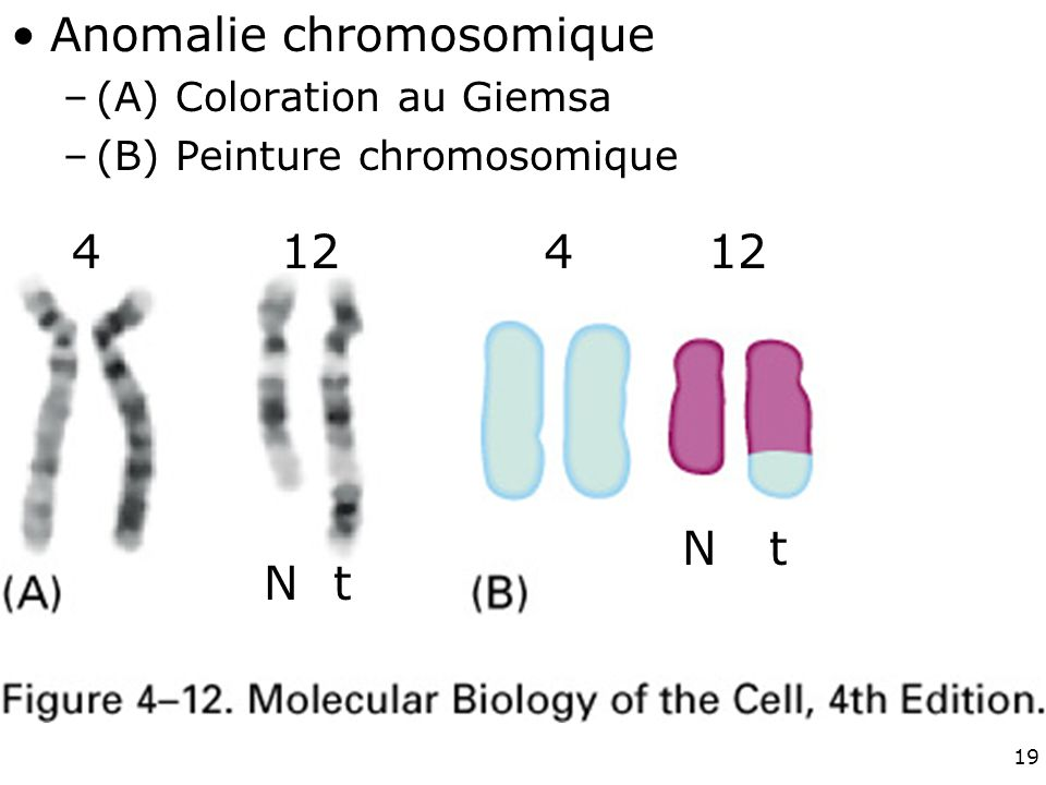 Fig 4-12 Anomalie chromosomique 4 12 4 12 N t N t