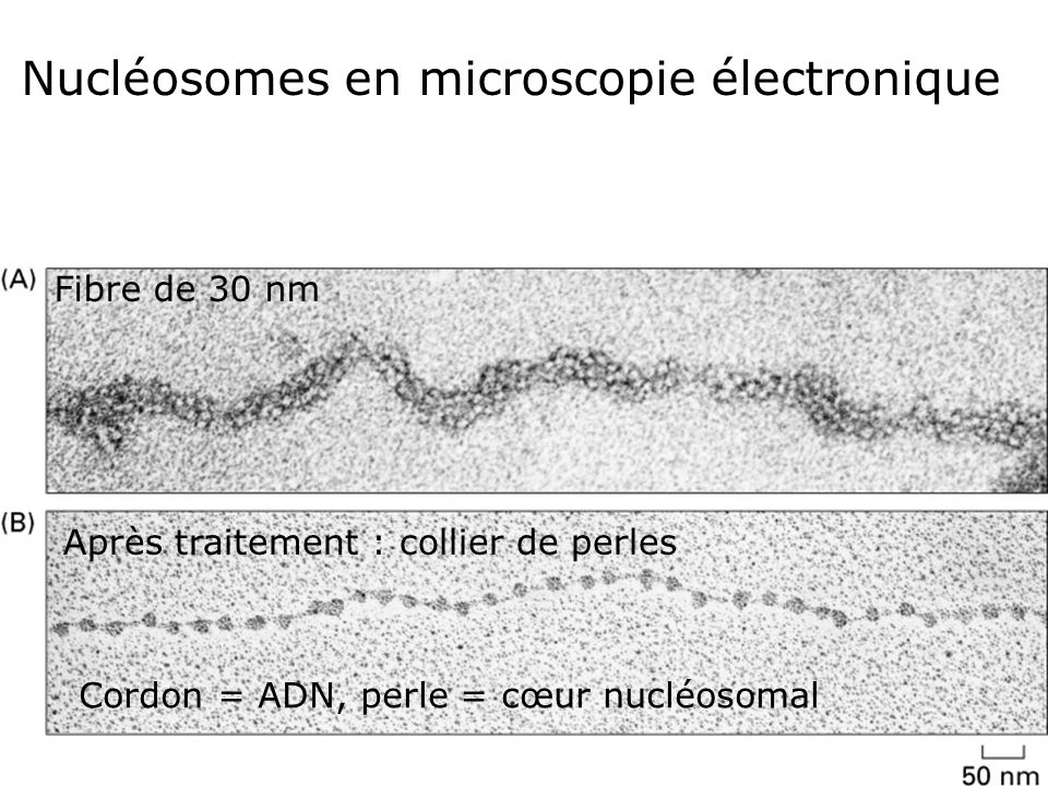 Fig 4-23 Nucléosomes en microscopie électronique Fibre de 30 nm