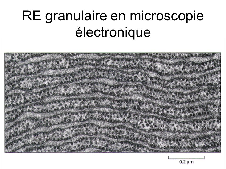 RE granulaire en microscopie électronique