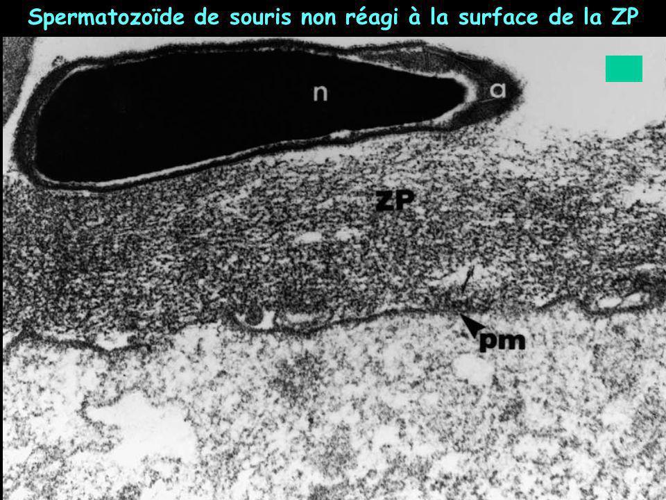 Spermatozoïde de souris non réagi à la surface de la ZP