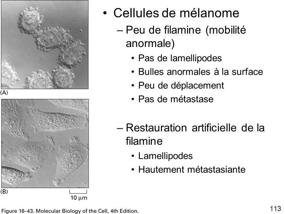 Fig16-43 Cellules de mélanome Peu de filamine (mobilité anormale)