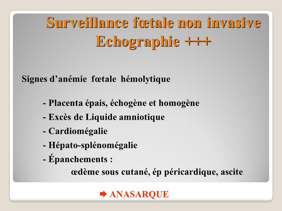 Surveillance fœtale non invasive Echographie +++