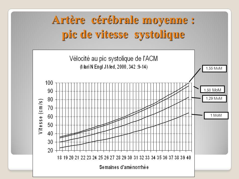 Artère cérébrale moyenne : pic de vitesse systolique