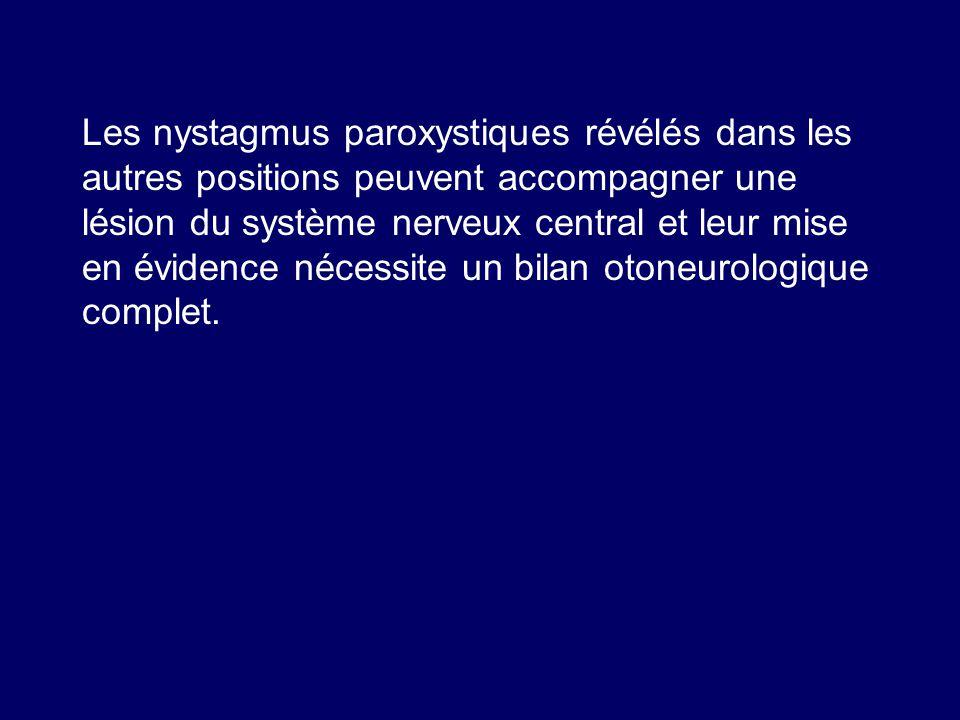Les nystagmus paroxystiques révélés dans les autres positions peuvent accompagner une lésion du système nerveux central et leur mise en évidence nécessite un bilan otoneurologique complet.