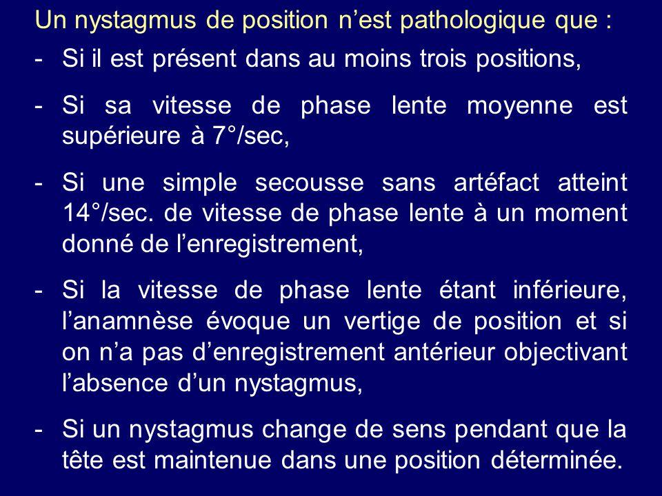 Un nystagmus de position n'est pathologique que :