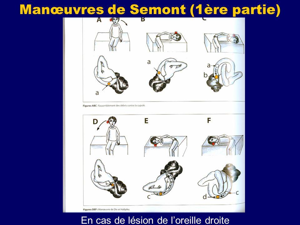 Manœuvres de Semont (1ère partie)