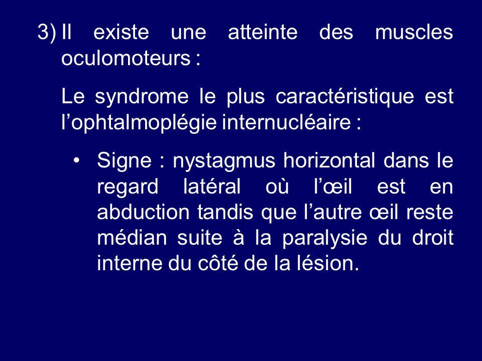 Il existe une atteinte des muscles oculomoteurs :