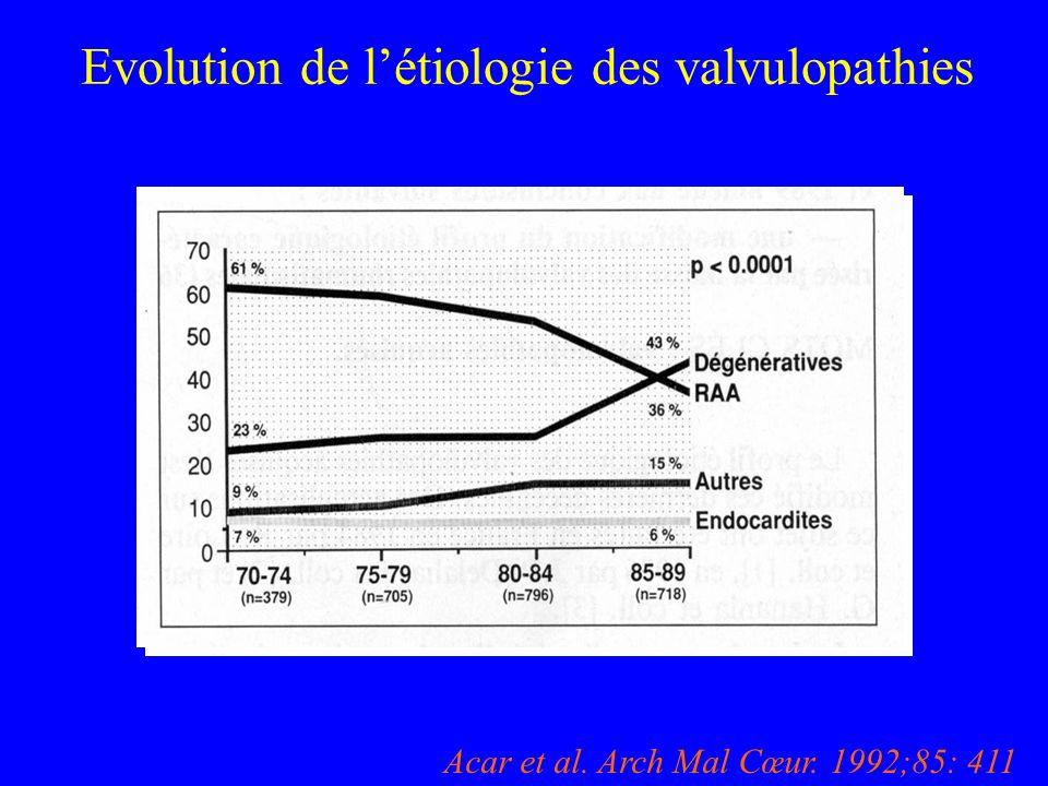 Evolution de l'étiologie des valvulopathies )