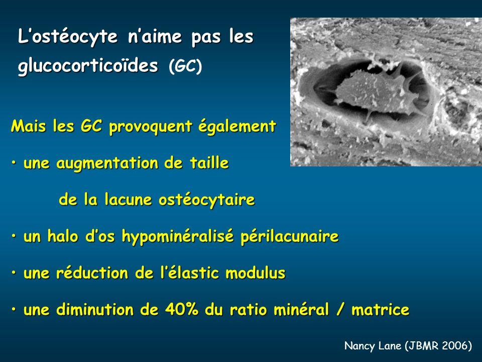 L'ostéocyte n'aime pas les glucocorticoïdes (GC)
