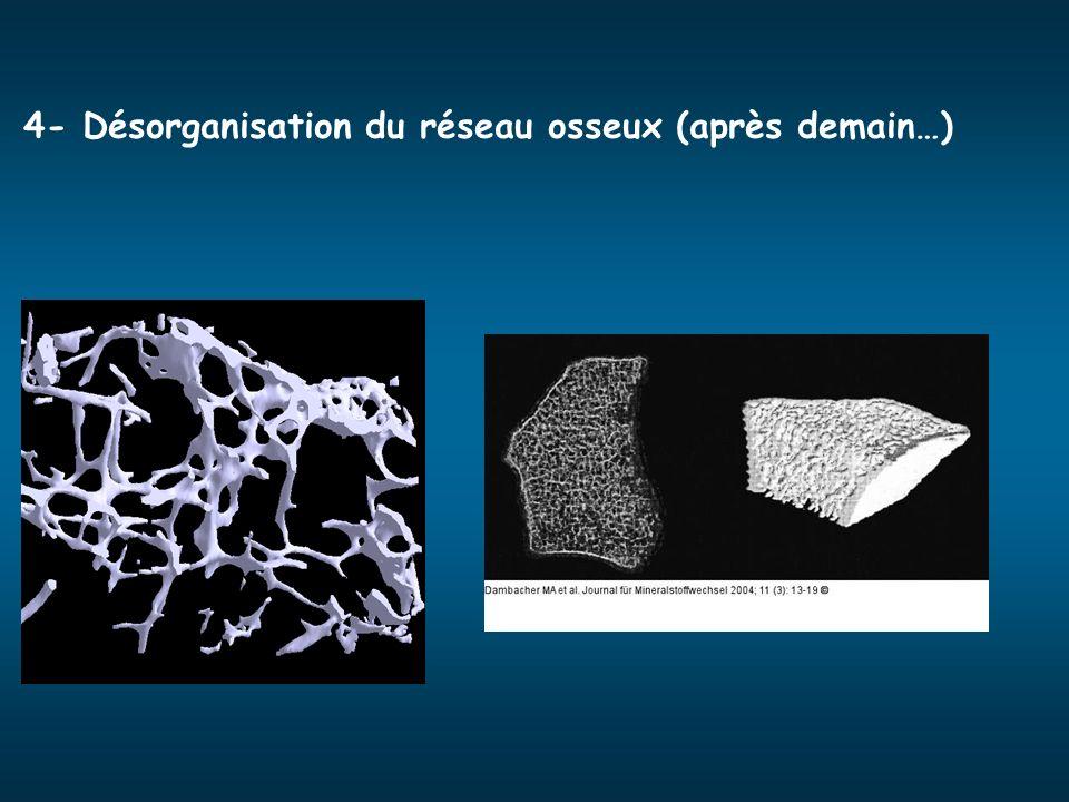 4- Désorganisation du réseau osseux (après demain…)