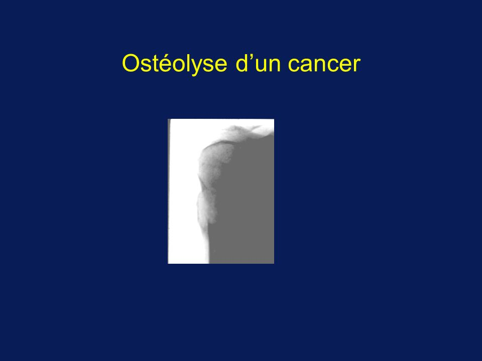 Ostéolyse d'un cancer