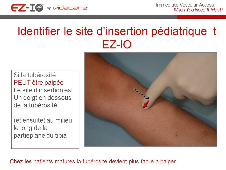 Identifier le site d'insertion pédiatrique t EZ-IO