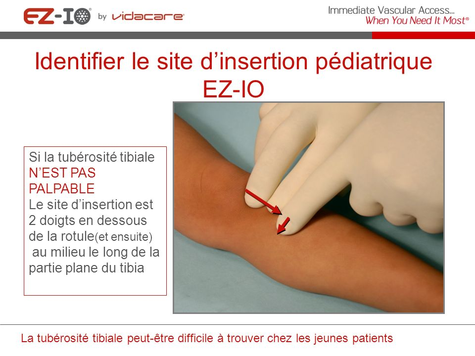 Identifier le site d'insertion pédiatrique EZ-IO