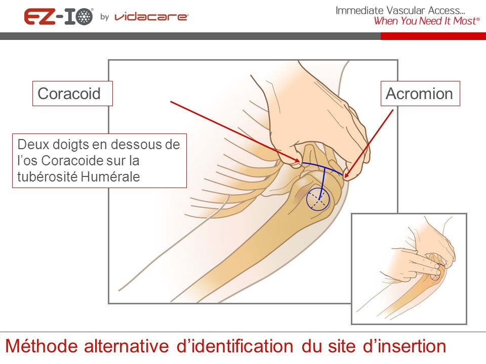 Méthode alternative d'identification du site d'insertion