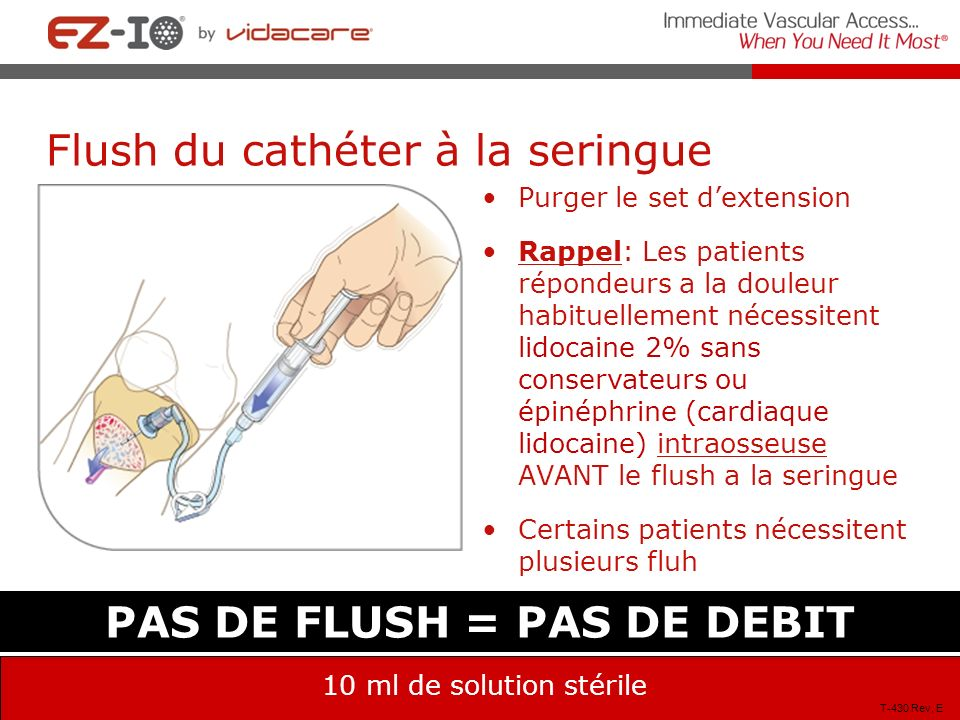 Flush du cathéter à la seringue