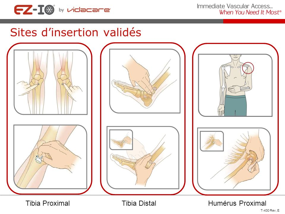 Sites d'insertion validés