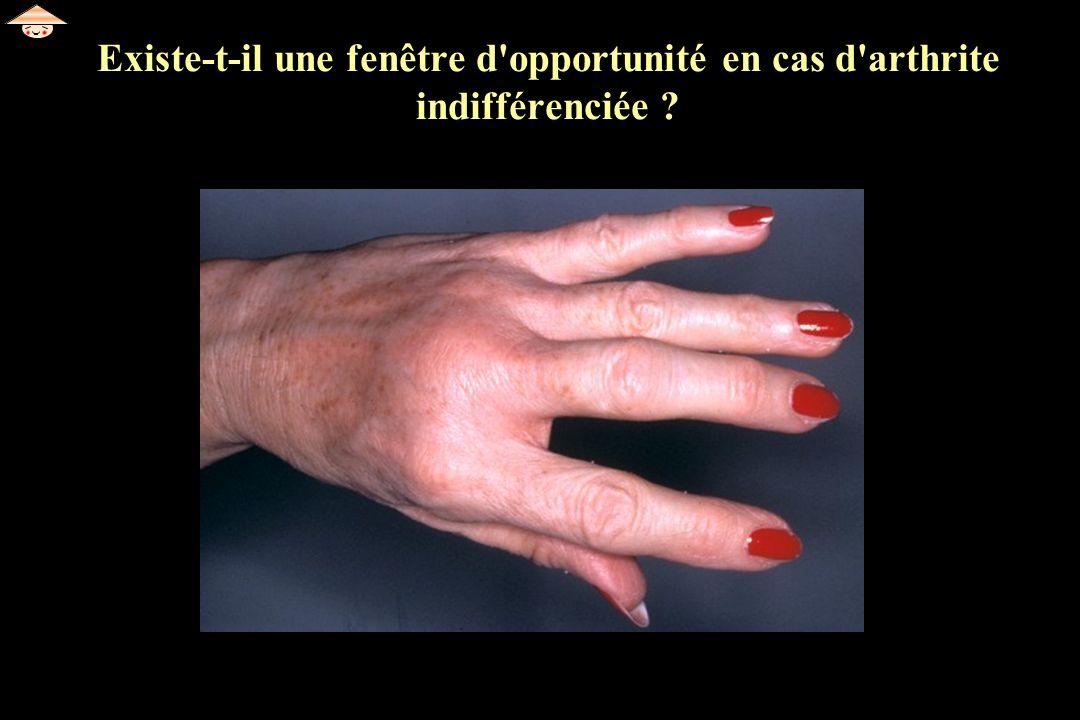 Existe-t-il une fenêtre d opportunité en cas d arthrite indifférenciée