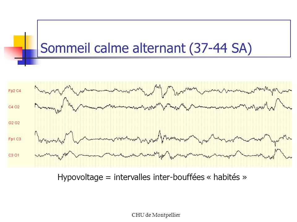 Sommeil calme alternant (37-44 SA)