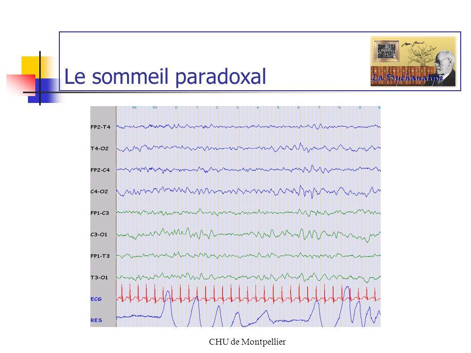 Le sommeil paradoxal CHU de Montpellier