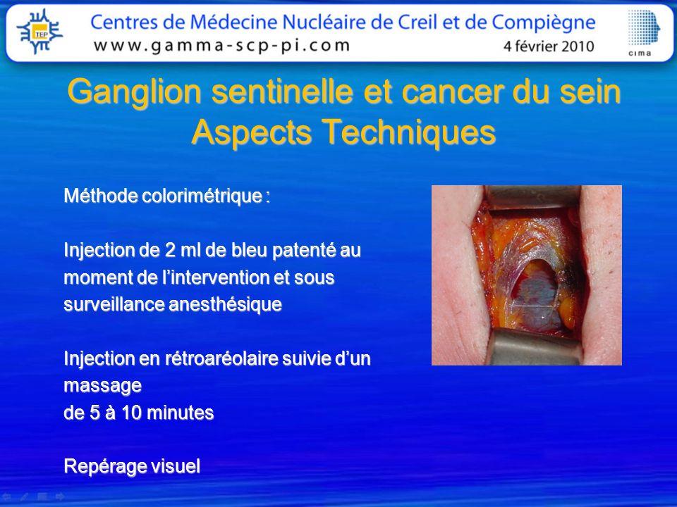 Ganglion sentinelle et cancer du sein Aspects Techniques