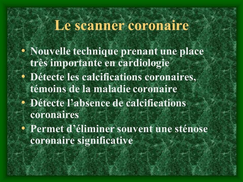 Le scanner coronaire Nouvelle technique prenant une place très importante en cardiologie.