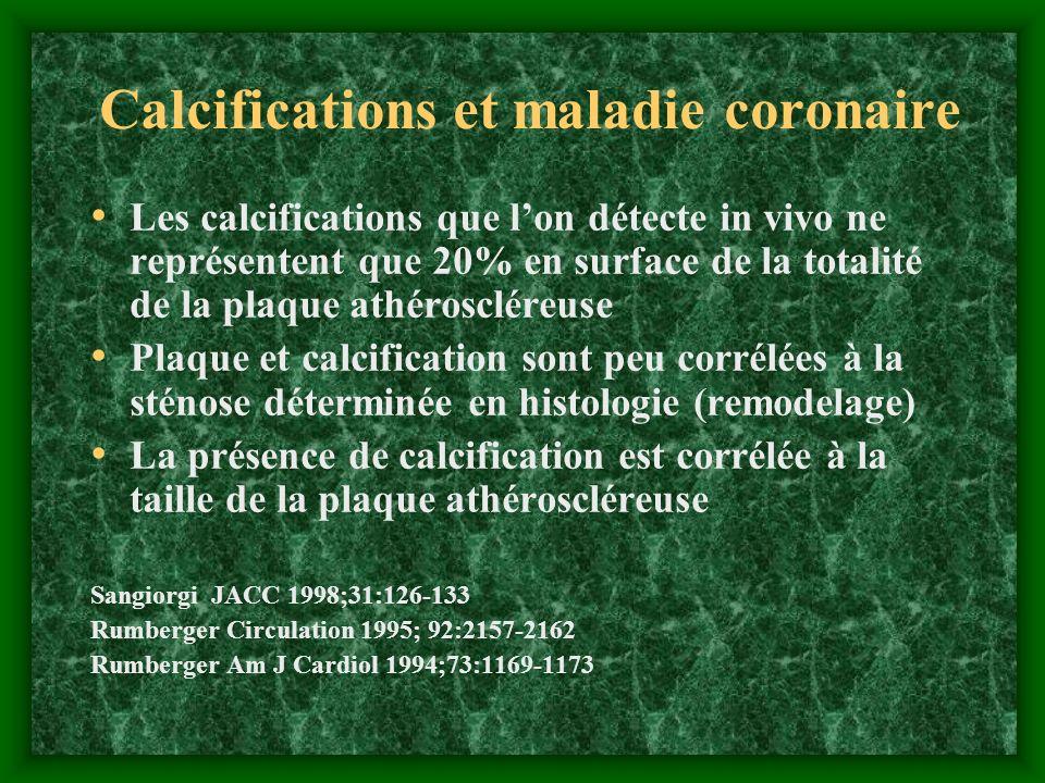 Calcifications et maladie coronaire