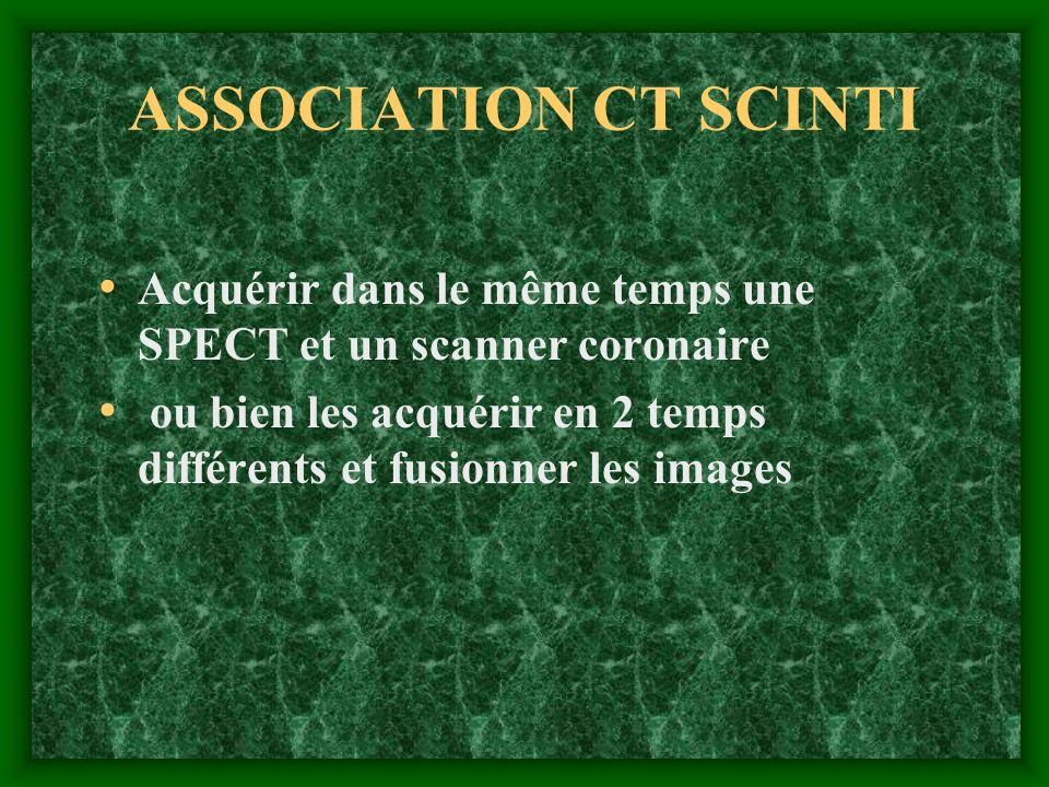 ASSOCIATION CT SCINTI Acquérir dans le même temps une SPECT et un scanner coronaire.
