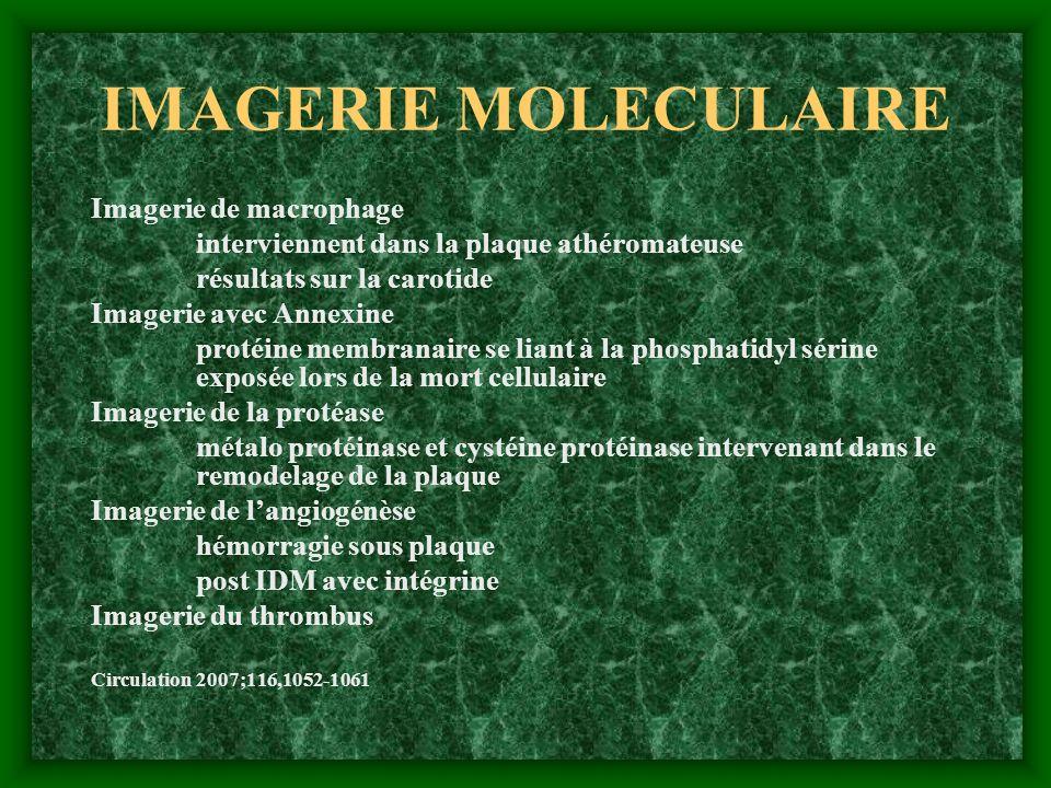 IMAGERIE MOLECULAIRE Imagerie de macrophage