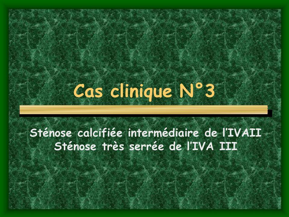 Cas clinique N°3 Sténose calcifiée intermédiaire de l'IVAII Sténose très serrée de l'IVA III