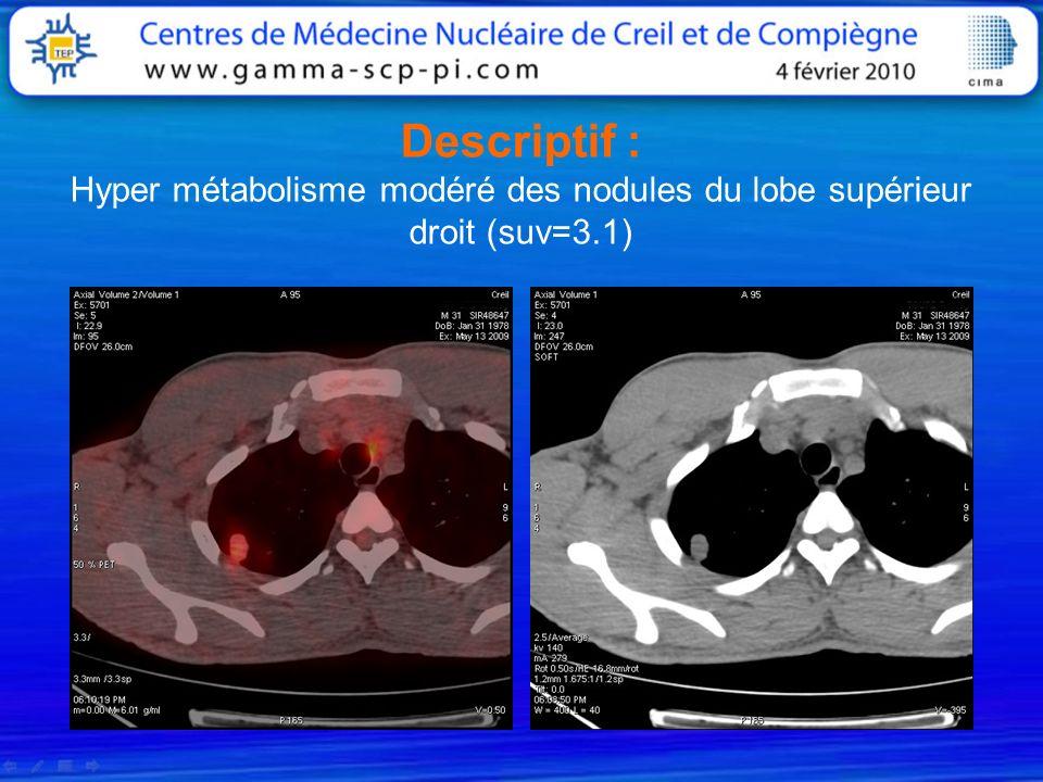 Descriptif : Hyper métabolisme modéré des nodules du lobe supérieur droit (suv=3.1)