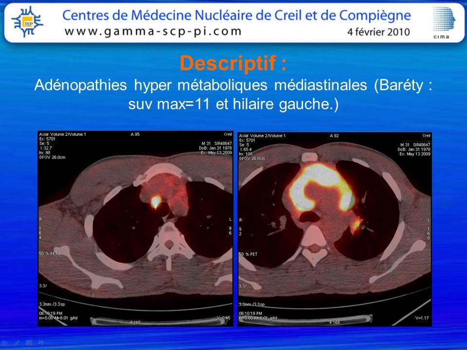 Descriptif : Adénopathies hyper métaboliques médiastinales (Baréty : suv max=11 et hilaire gauche.)