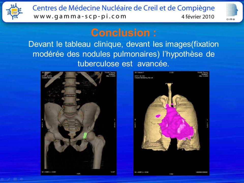 Conclusion : Devant le tableau clinique, devant les images(fixation modérée des nodules pulmonaires) l'hypothèse de tuberculose est avancée.