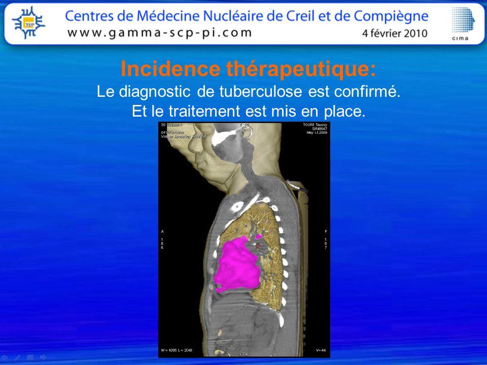 Incidence thérapeutique: Le diagnostic de tuberculose est confirmé