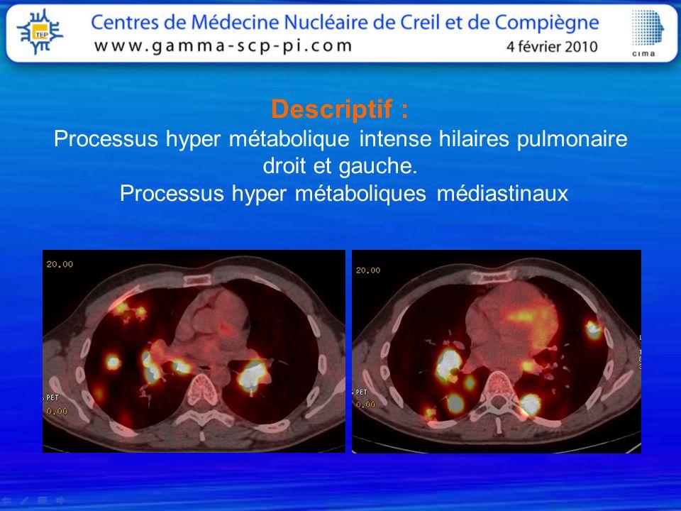 Descriptif : Processus hyper métabolique intense hilaires pulmonaire droit et gauche.