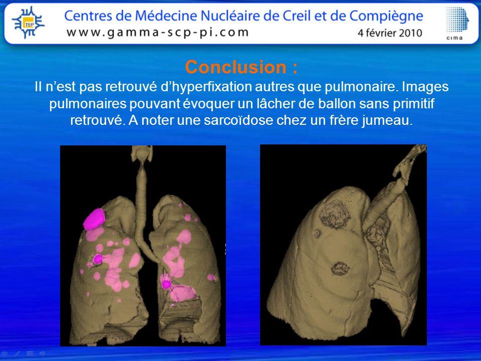 Conclusion : Il n'est pas retrouvé d'hyperfixation autres que pulmonaire.