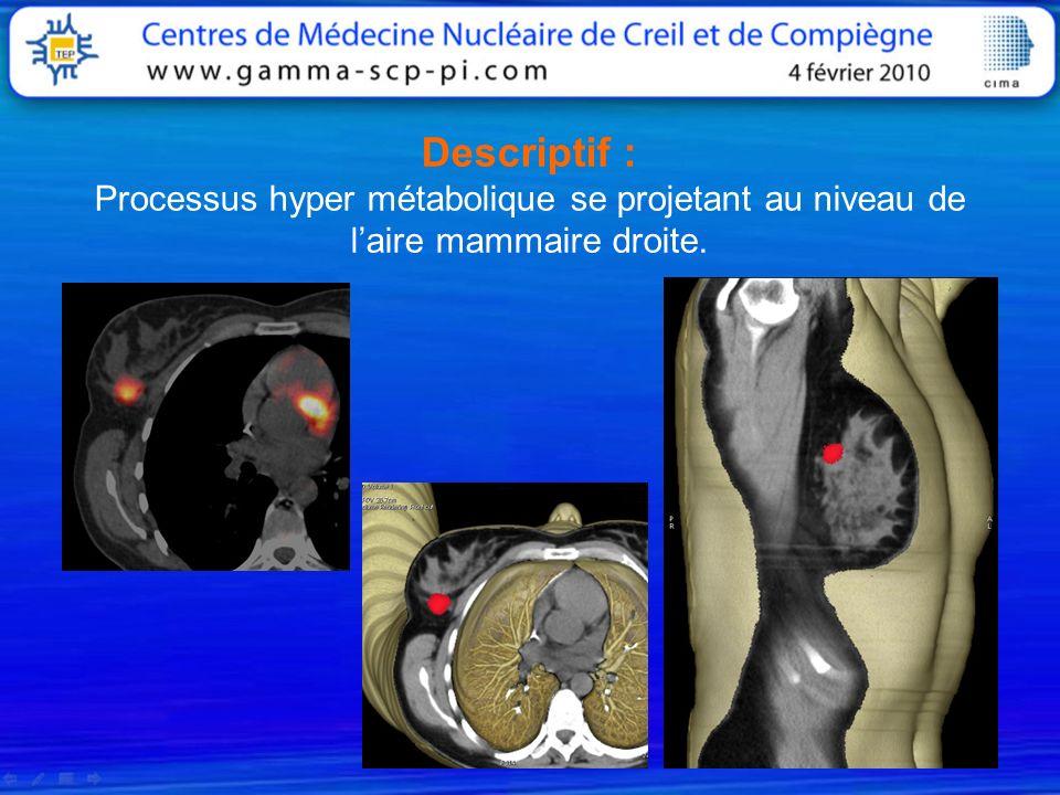 Descriptif : Processus hyper métabolique se projetant au niveau de l'aire mammaire droite.