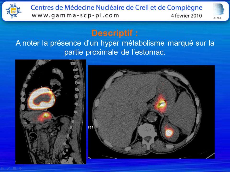 Descriptif : A noter la présence d'un hyper métabolisme marqué sur la partie proximale de l'estomac.