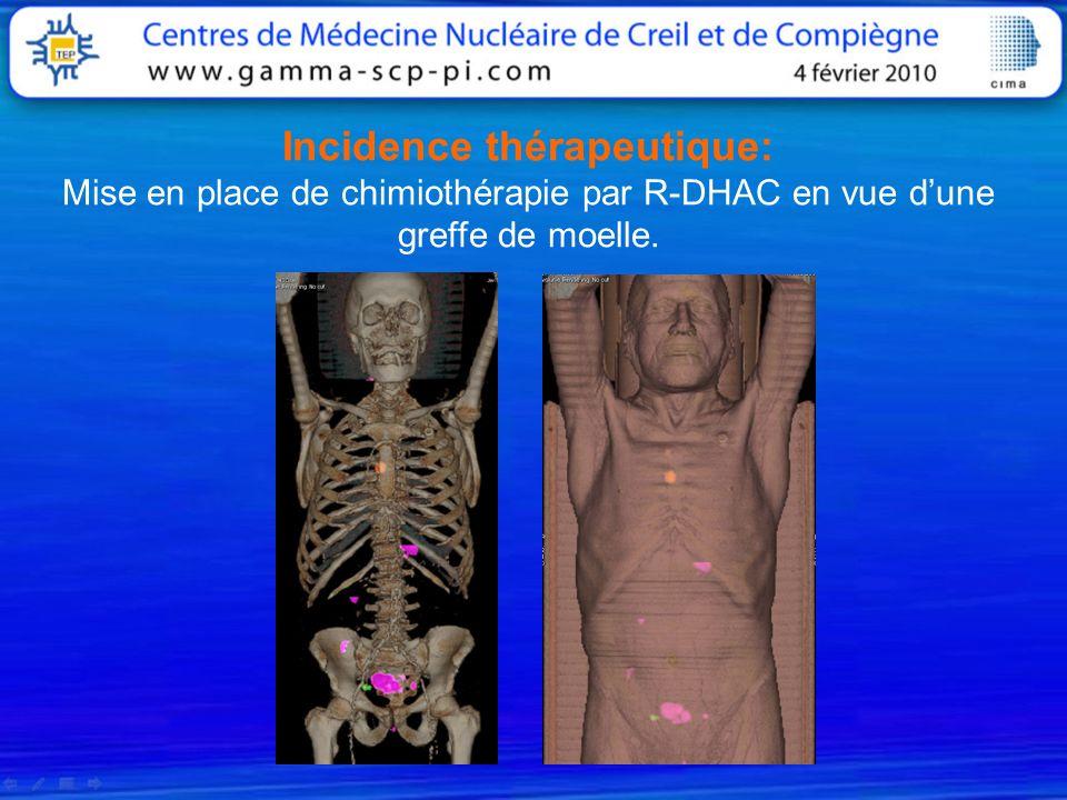 Incidence thérapeutique: Mise en place de chimiothérapie par R-DHAC en vue d'une greffe de moelle.