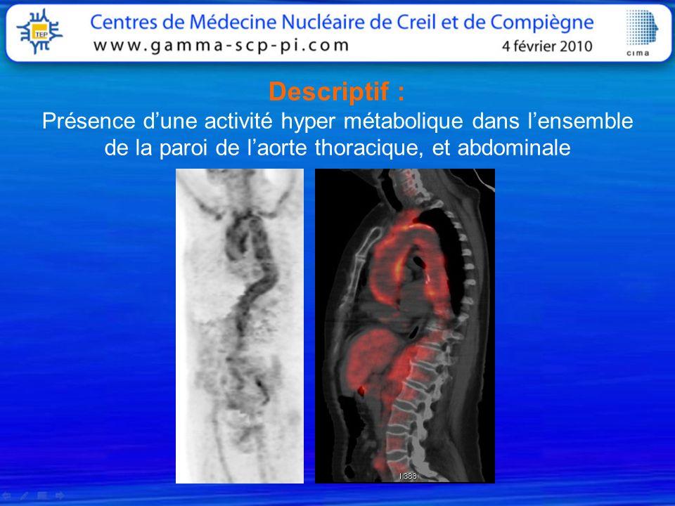 Descriptif : Présence d'une activité hyper métabolique dans l'ensemble de la paroi de l'aorte thoracique, et abdominale