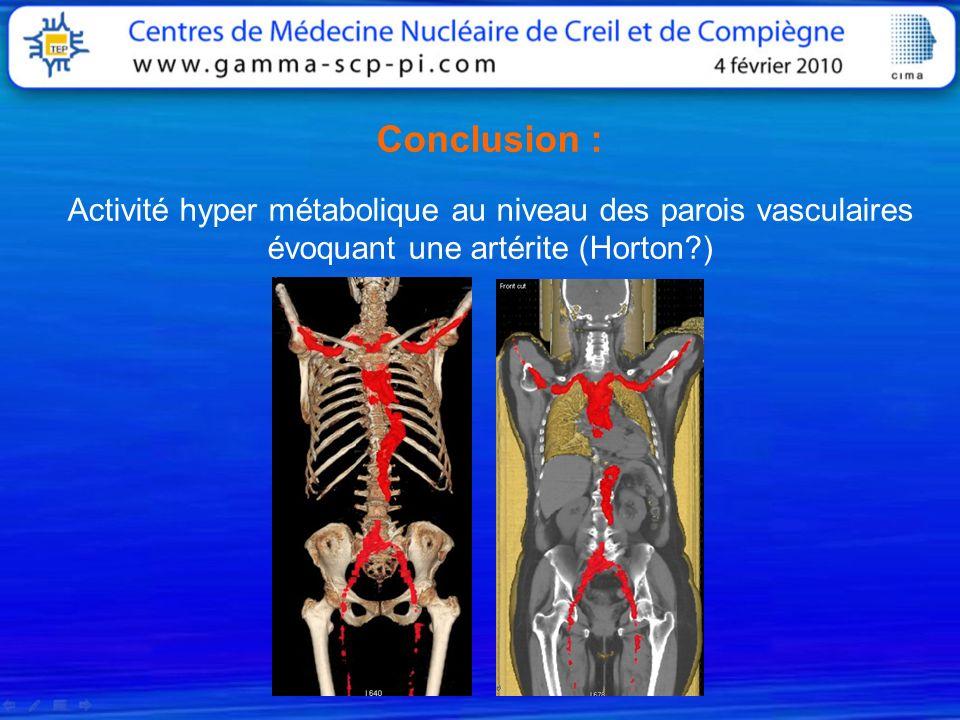Conclusion : Activité hyper métabolique au niveau des parois vasculaires évoquant une artérite (Horton )