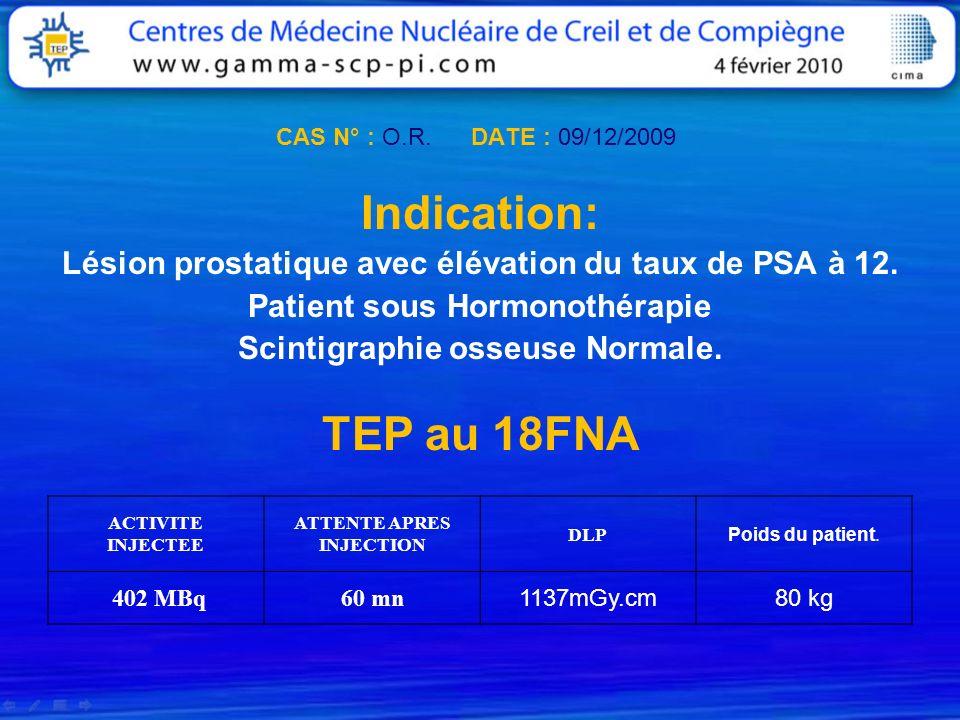 CAS N° : O.R. DATE : 09/12/2009Indication: Lésion prostatique avec élévation du taux de PSA à 12.