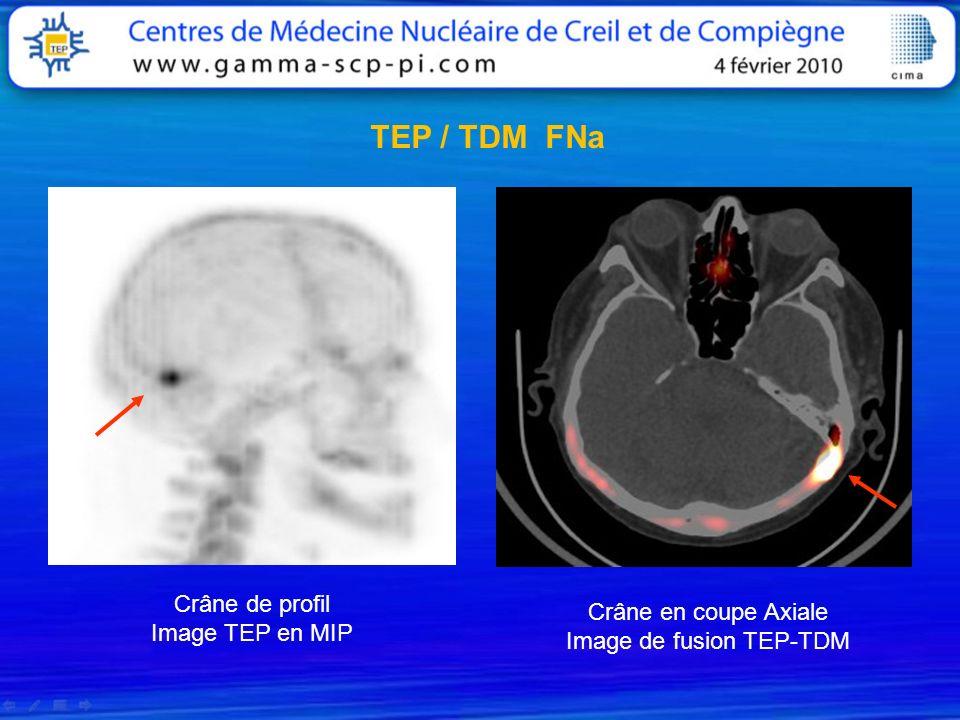 Image de fusion TEP-TDM