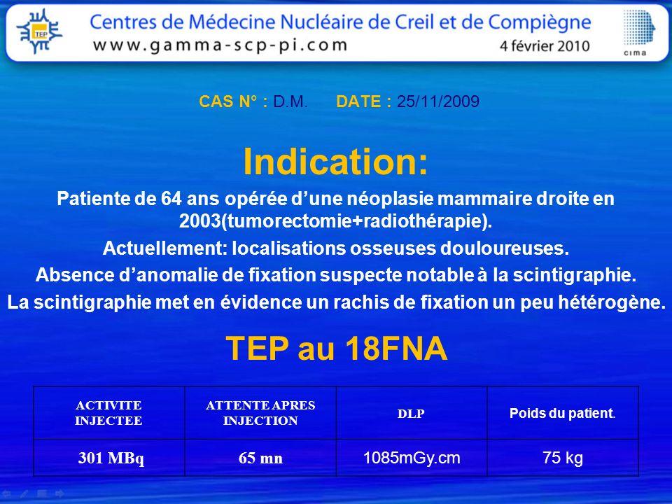 CAS N° : D.M. DATE : 25/11/2009 Indication: Patiente de 64 ans opérée d'une néoplasie mammaire droite en 2003(tumorectomie+radiothérapie).