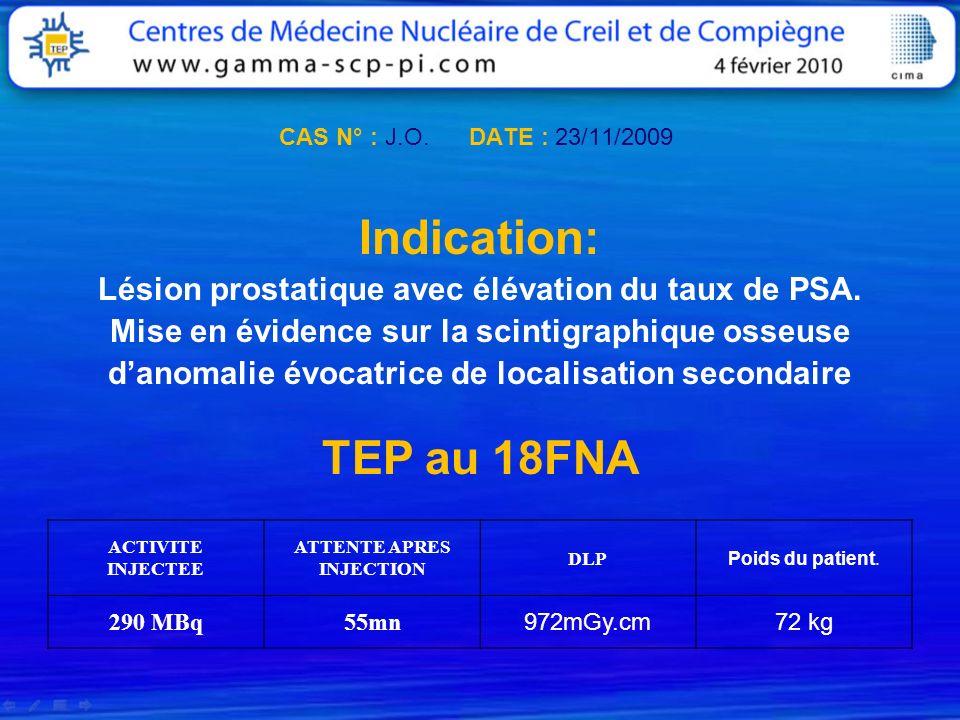 CAS N° : J.O. DATE : 23/11/2009Indication: Lésion prostatique avec élévation du taux de PSA. Mise en évidence sur la scintigraphique osseuse.